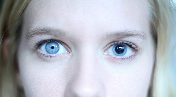 Cuando tus pupilas son asimétricas, la anisocoria