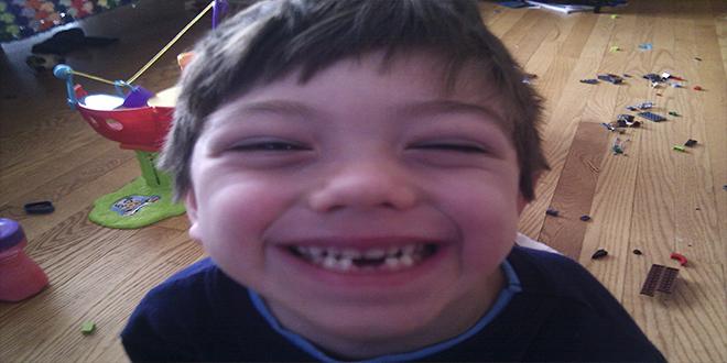 Ésta es la razón por la que deberías guardar los dientes de leche de tus hijos