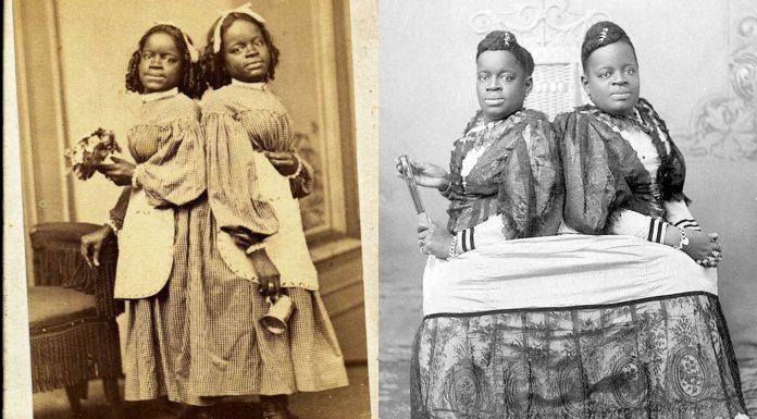 Millie y Christine McKoy, siamesas, esclavas, compradas y vendidas como objetos