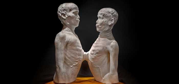 ¿Sabes por qué se llama siameses a los gemelos que nacen pegados? Chang y Eng los increíbles hermanos siameses