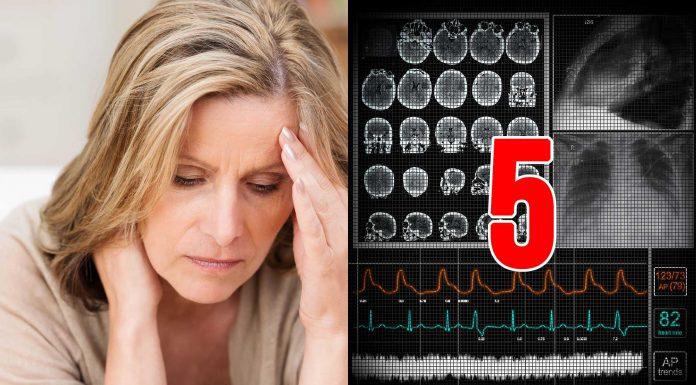 sintomas comunes de la esclerosis múltiple