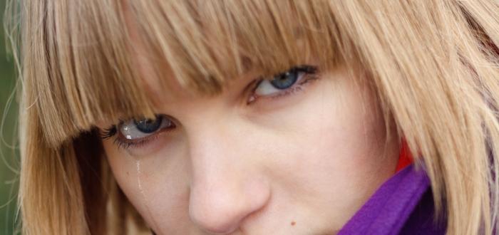 ¿Puede el albinismo ser la causa?