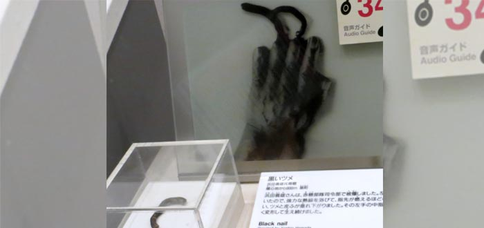 Una fotografía de las uñas negras que crecieron a uno de los supervivientes tras el ataque nuclear a Hiroshima - Museo Memorial de la Paz de Hiroshima