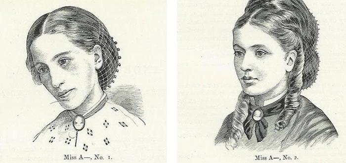 Representación de 1866 de un Antes y Después del Tratamiento de una paciente con anorexia nerviosa. De los estudios de Sir William Gull