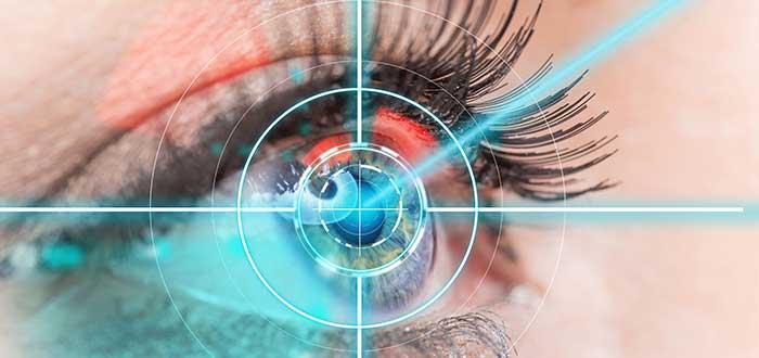 cambiar de color de ojos, métodos, láser