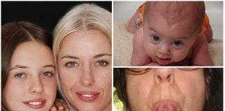 Herencia genética: 6 rasgos y su dominancia