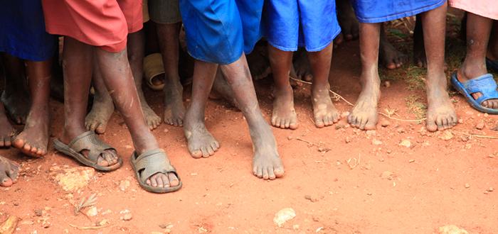 ir descalzo, zapatos que crecen, tercer mundo