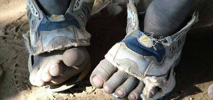 zapatos rotos, zapatos que crecen, tercer mundo