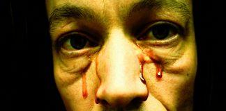 ¿Se puede sudar sangre? Descubre la Hematohidrosis, una extraña enfermedad