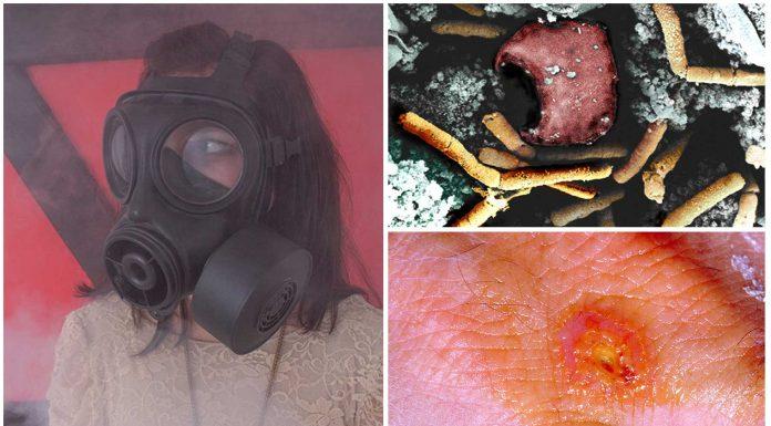 3 terribles enfermedades, potenciales armas biológicas