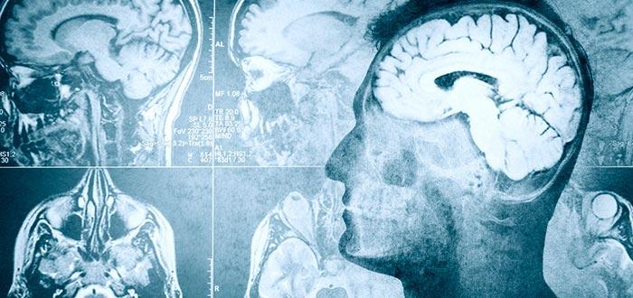 curiosidades del mundo, cerebro