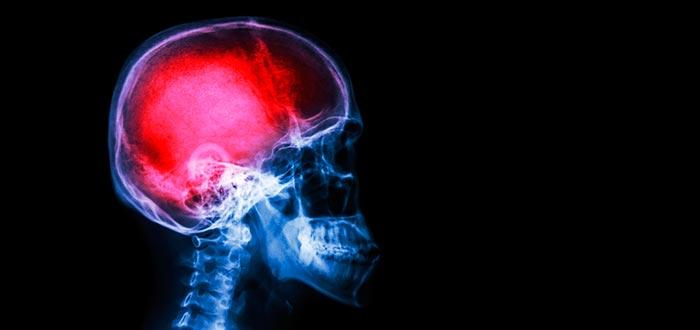 enfermedades del cerebro