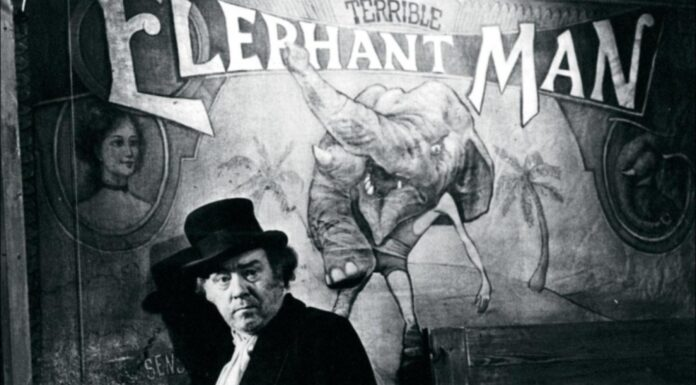 El Hombre Elefante, 10 curiosidades sobre su vida
