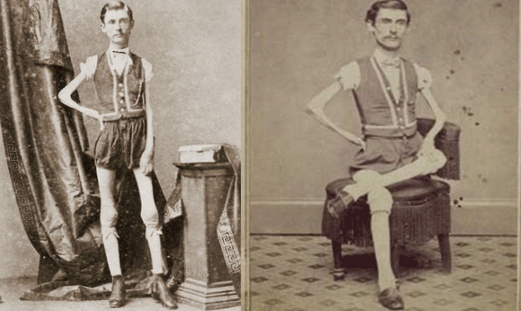 Isaac W Sprague El hombre al que llamaron el esqueleto viviente