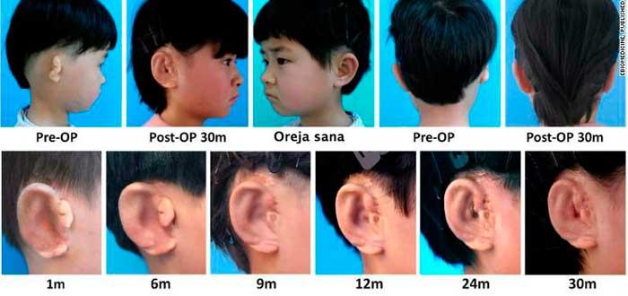 5 niños logran tener orejas creadas con células de su cuerpo
