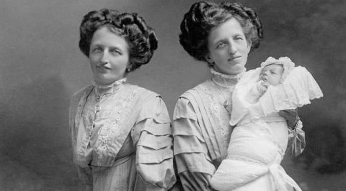 La triste historia de Rosa y Josepha Blazek, las siamesas de Bohemia