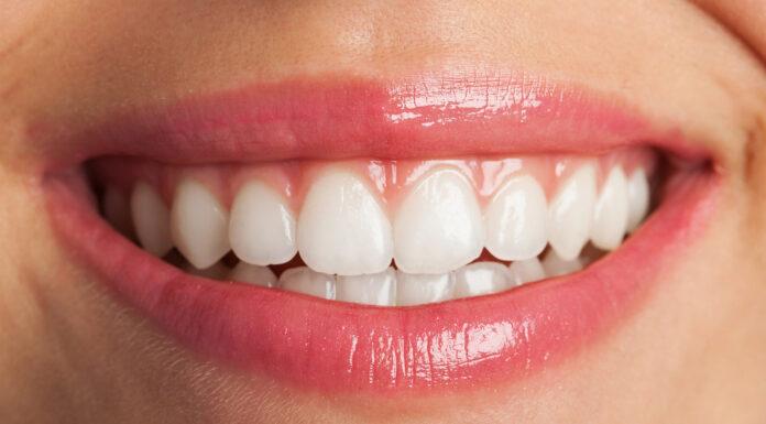 ¿Qué es la periodontitis? | Te contamos cómo prevenirla