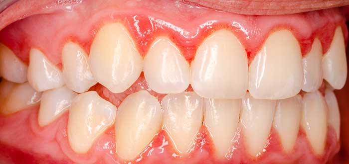 Gingivitis, periodontitis y otras enfermedades bucales