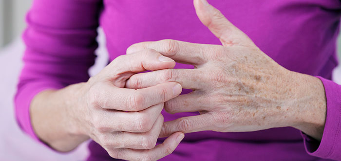 Artrosis: conozca cómo prevenir esta enfermedad degenerativa 2