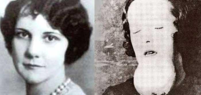 Amelia Maggia | No fue sífilis sino radio lo que la mató