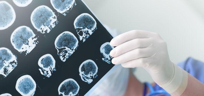 Epilepsia, la enfermedad que mató a Boyce