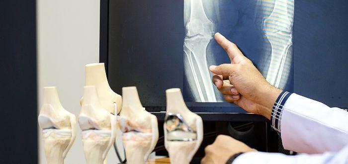Por qué crujen los huesos